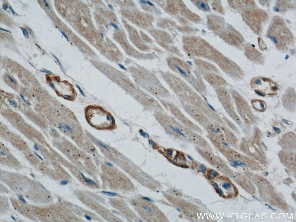 TOM70 Antibody in Immunohistochemistry (Paraffin) (IHC (P))