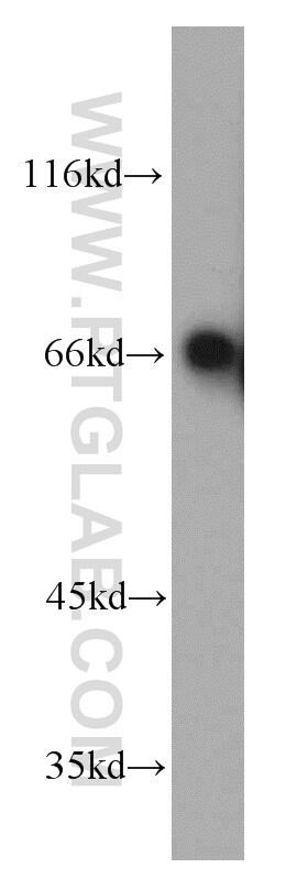 TOM70 Antibody in Western Blot (WB)