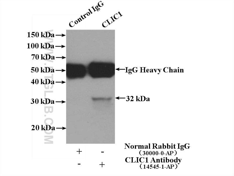 CLIC1 Antibody in Immunoprecipitation (IP)