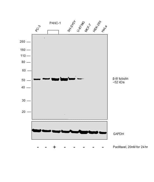 beta-3 Tubulin Antibody in Relative expression