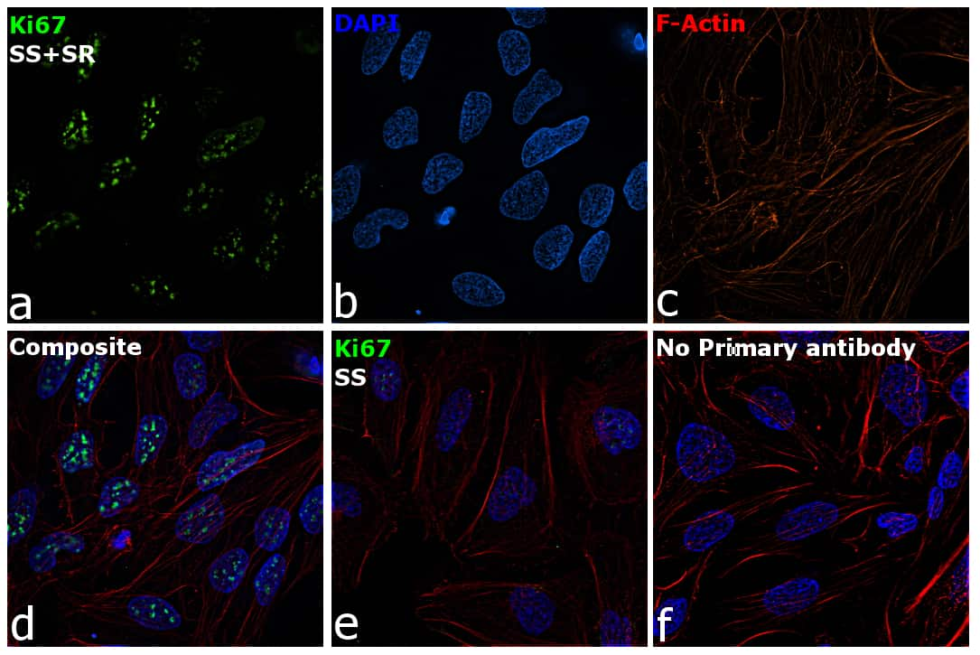 Ki-67 Antibody in Immunofluorescence (IF)