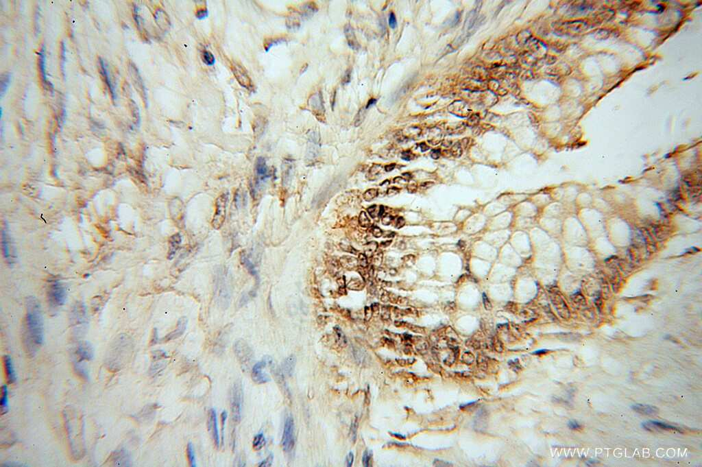 HMG20B Antibody in Immunohistochemistry (Paraffin) (IHC (P))
