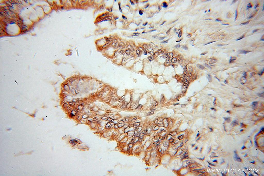 CES3 Antibody in Immunohistochemistry (Paraffin) (IHC (P))