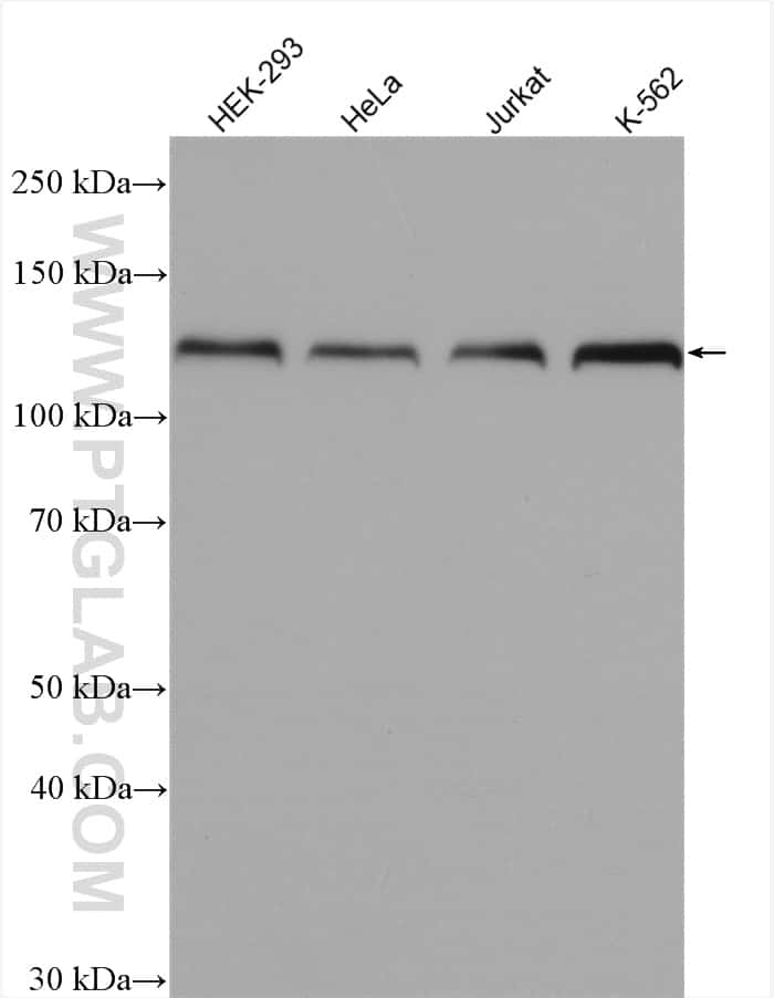 HNRNPU Antibody in Western Blot (WB)