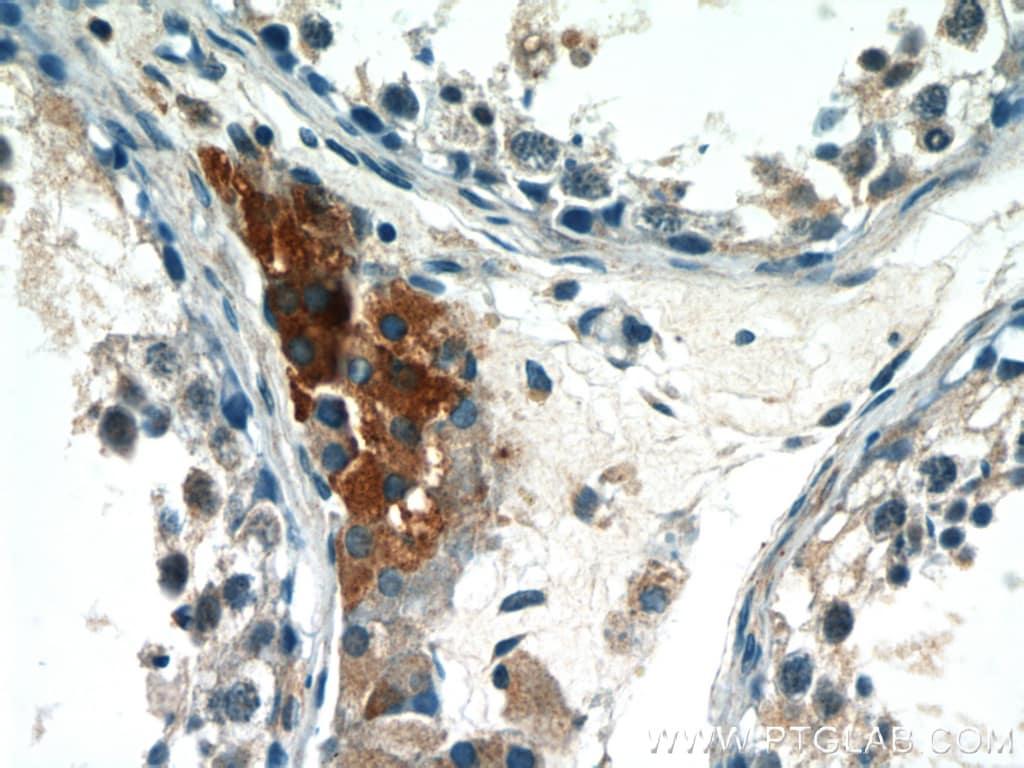 LC3 Antibody in Immunohistochemistry (Paraffin) (IHC (P))