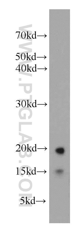 LC3 Antibody in Western Blot (WB)