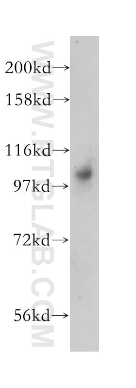 DNM2 Antibody in Western Blot (WB)