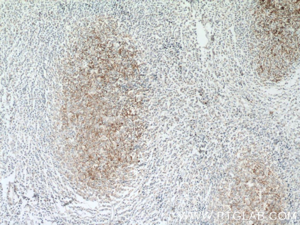 SMPD1/ASM Antibody in Immunohistochemistry (Paraffin) (IHC (P))