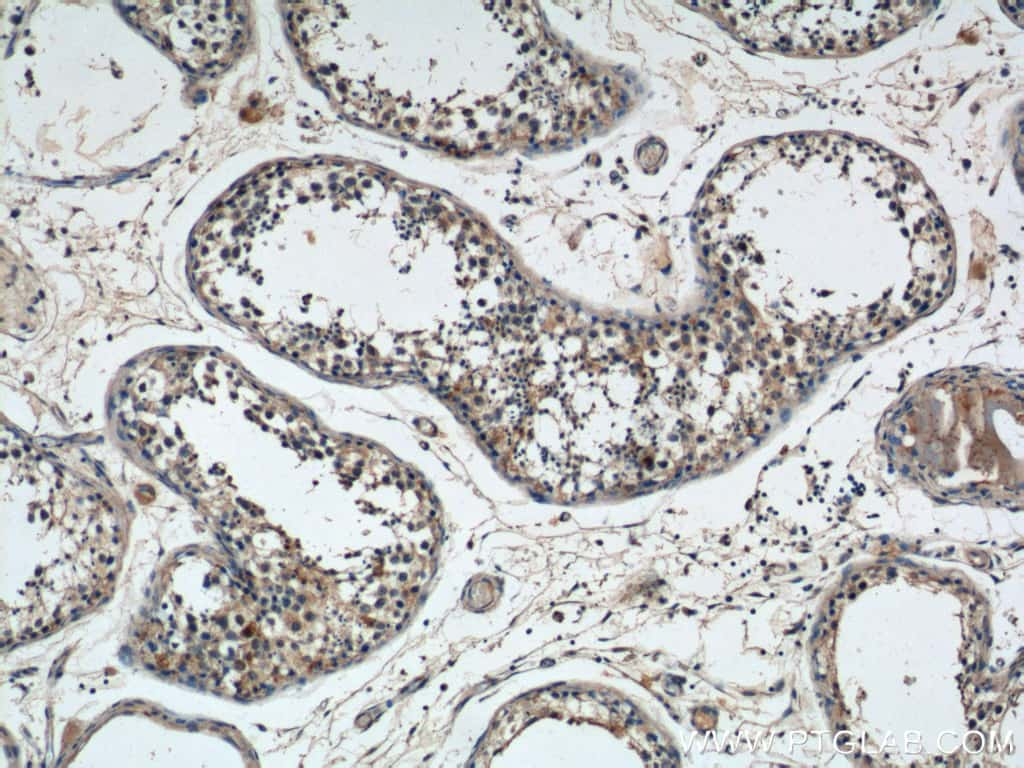 NMUR1 Antibody in Immunohistochemistry (Paraffin) (IHC (P))