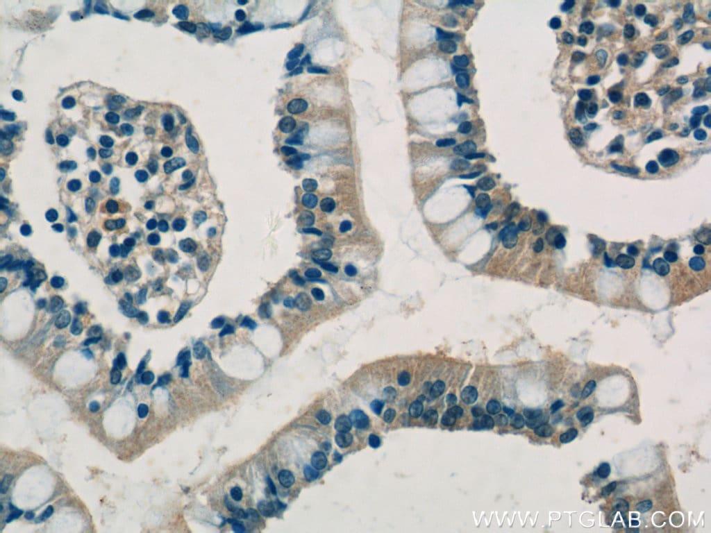 SHARPIN Antibody in Immunohistochemistry (Paraffin) (IHC (P))
