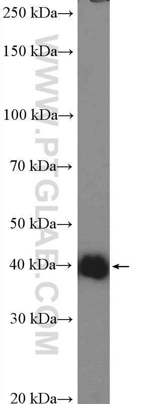 SHARPIN Antibody in Western Blot (WB)