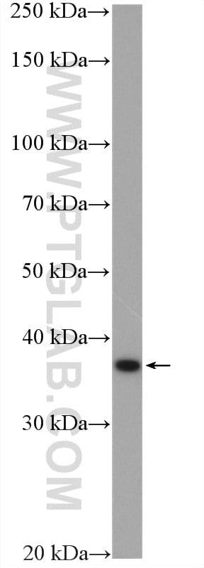 RDH10 Antibody in Western Blot (WB)