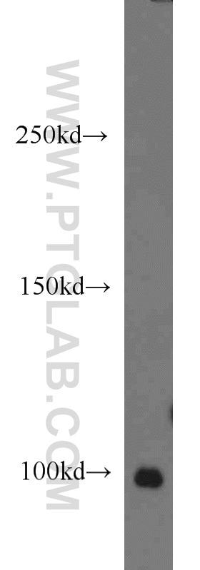 POSH Antibody in Western Blot (WB)