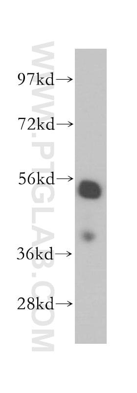 LAP2 Antibody in Western Blot (WB)