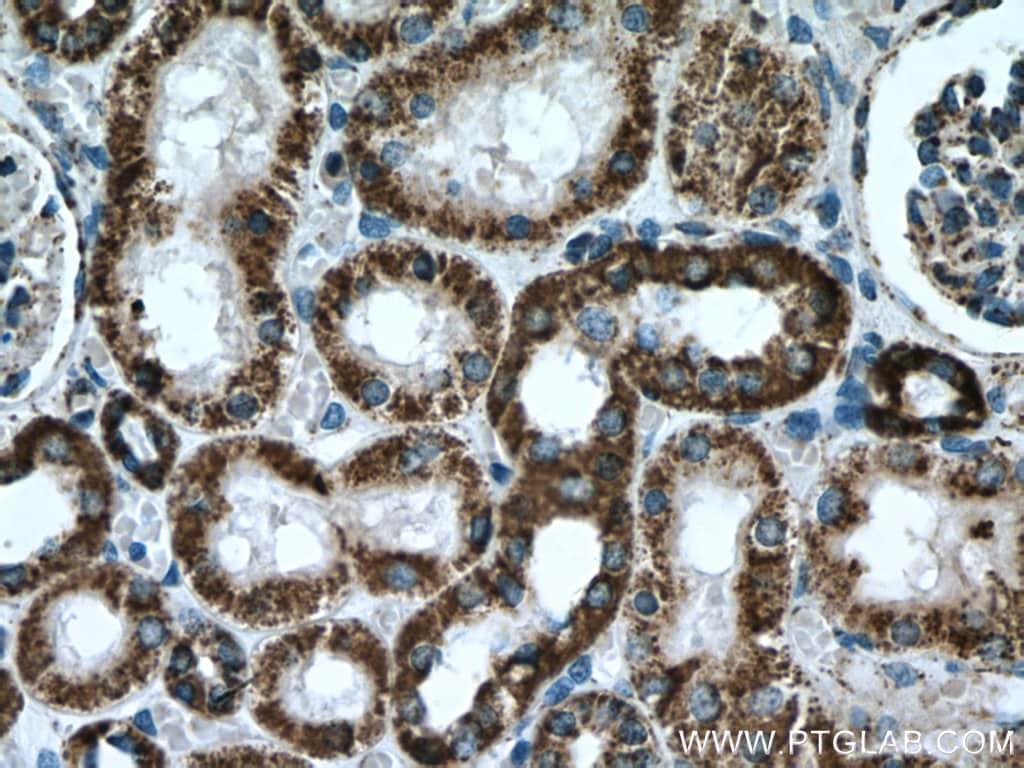 ATP5A1 Antibody in Immunohistochemistry (Paraffin) (IHC (P))