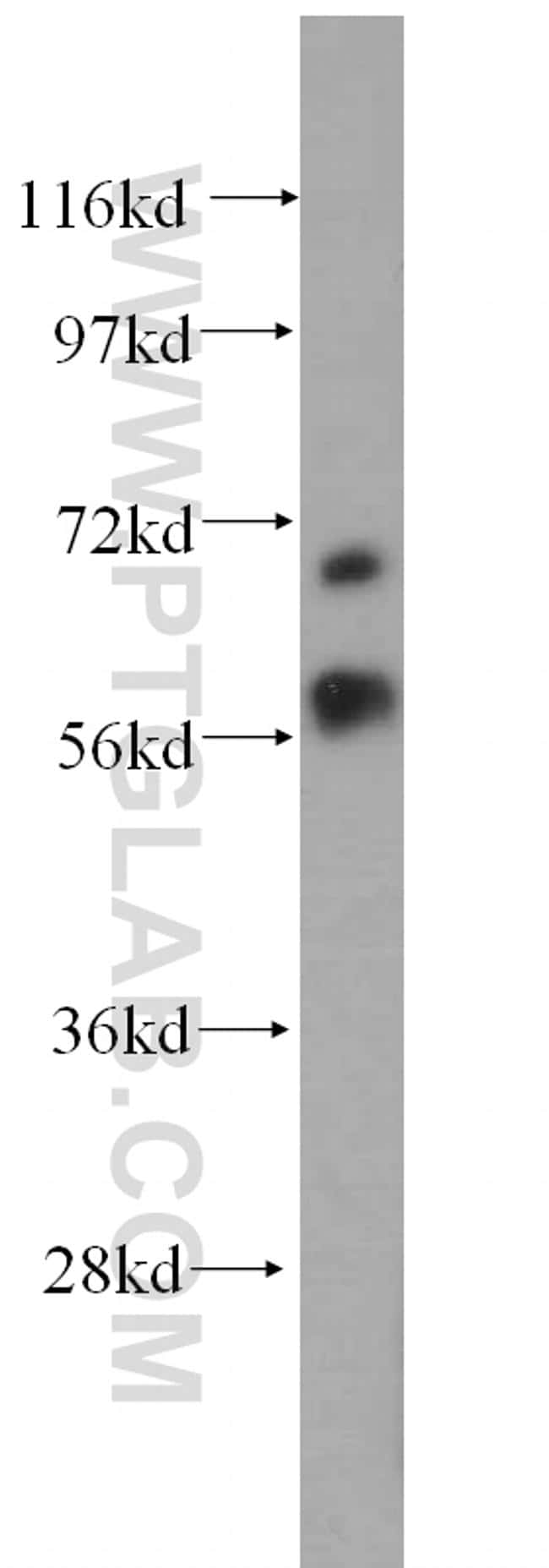 MTA3 Antibody in Western Blot (WB)