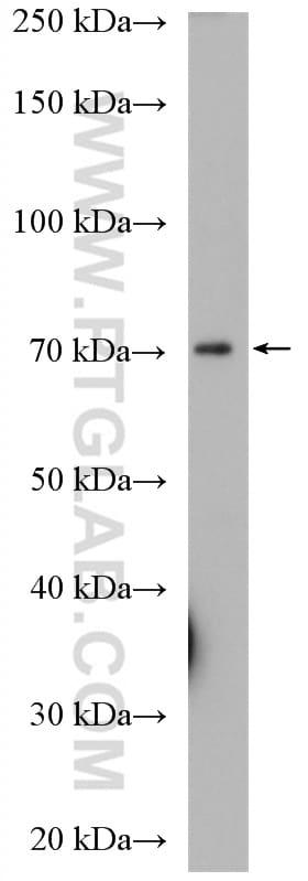 KCNAB1 Antibody in Western Blot (WB)
