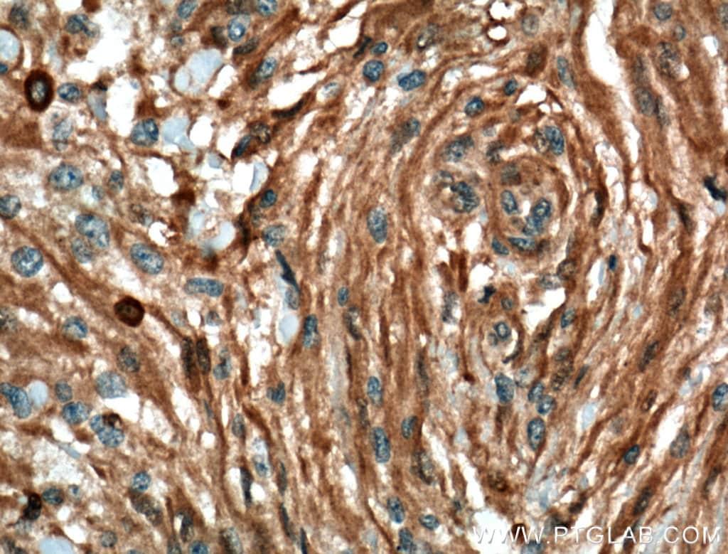 MGEA5 Antibody in Immunohistochemistry (Paraffin) (IHC (P))