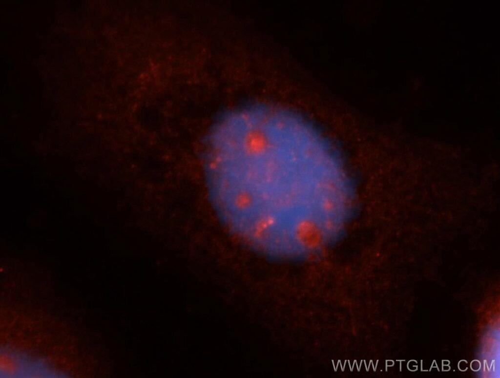 SPAG5 Antibody in Immunofluorescence (IF)