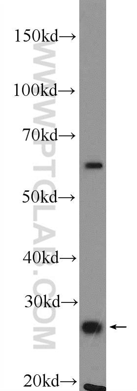UCHL1/PGP9.5 Antibody in Western Blot (WB)