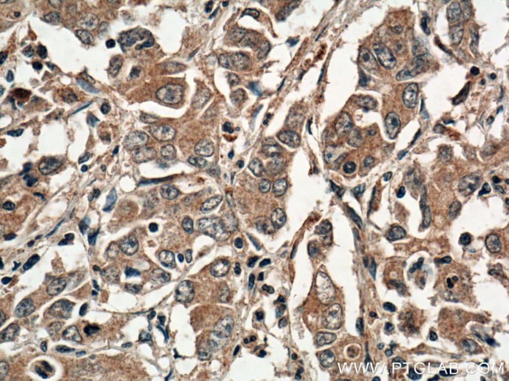 DNM3 Antibody in Immunohistochemistry (Paraffin) (IHC (P))