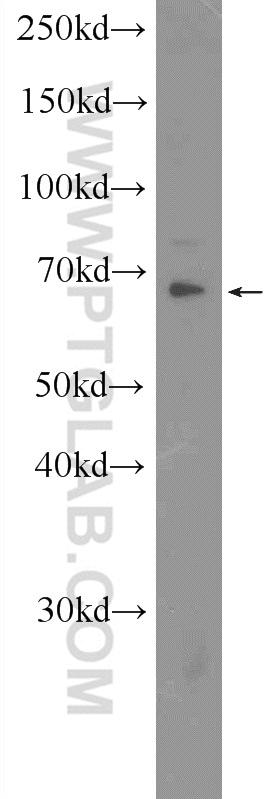 CDK5RAP1 Antibody in Western Blot (WB)