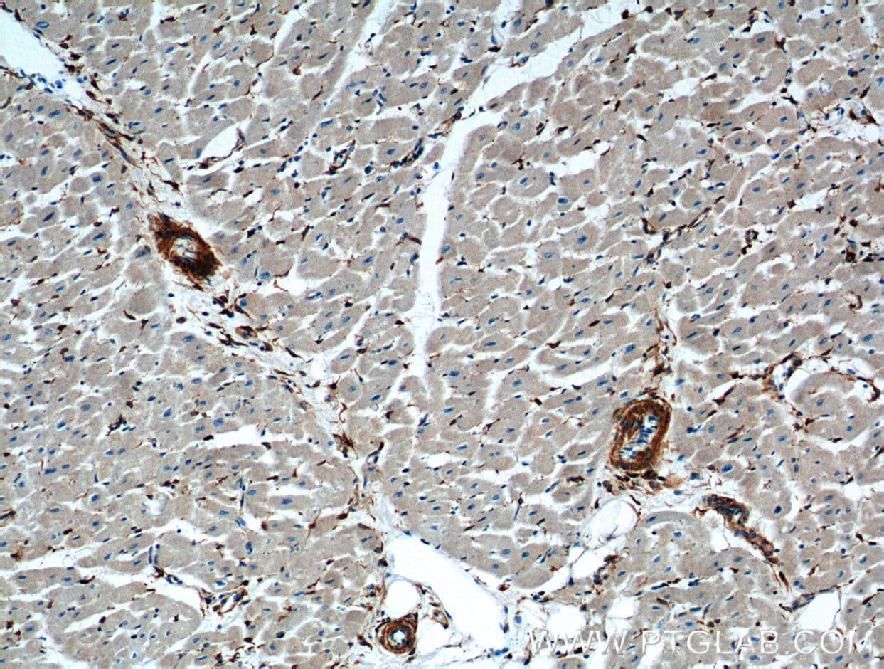 ACVRL1 Antibody in Immunohistochemistry (Paraffin) (IHC (P))