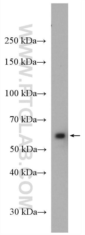 CORO1C Antibody in Western Blot (WB)