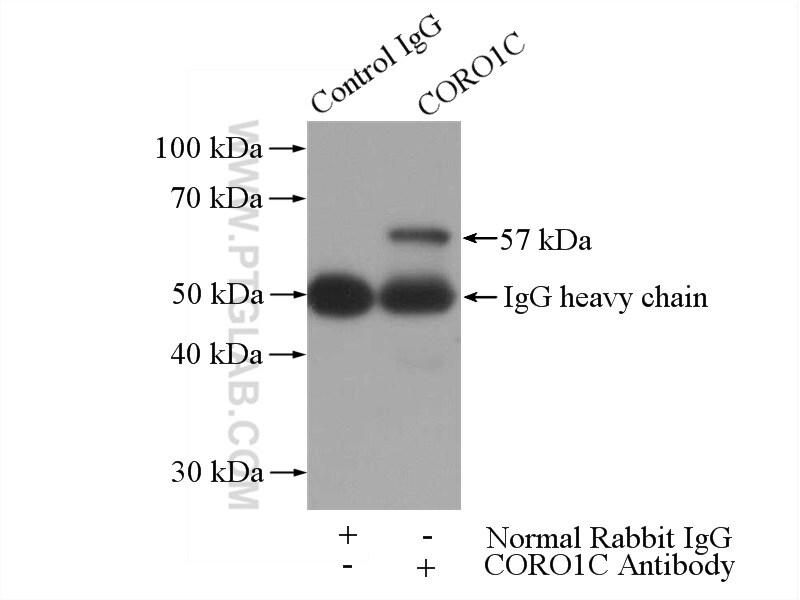 CORO1C Antibody in Immunoprecipitation (IP)