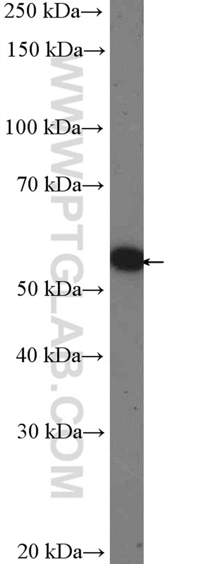 OSBPL2 Antibody in Western Blot (WB)