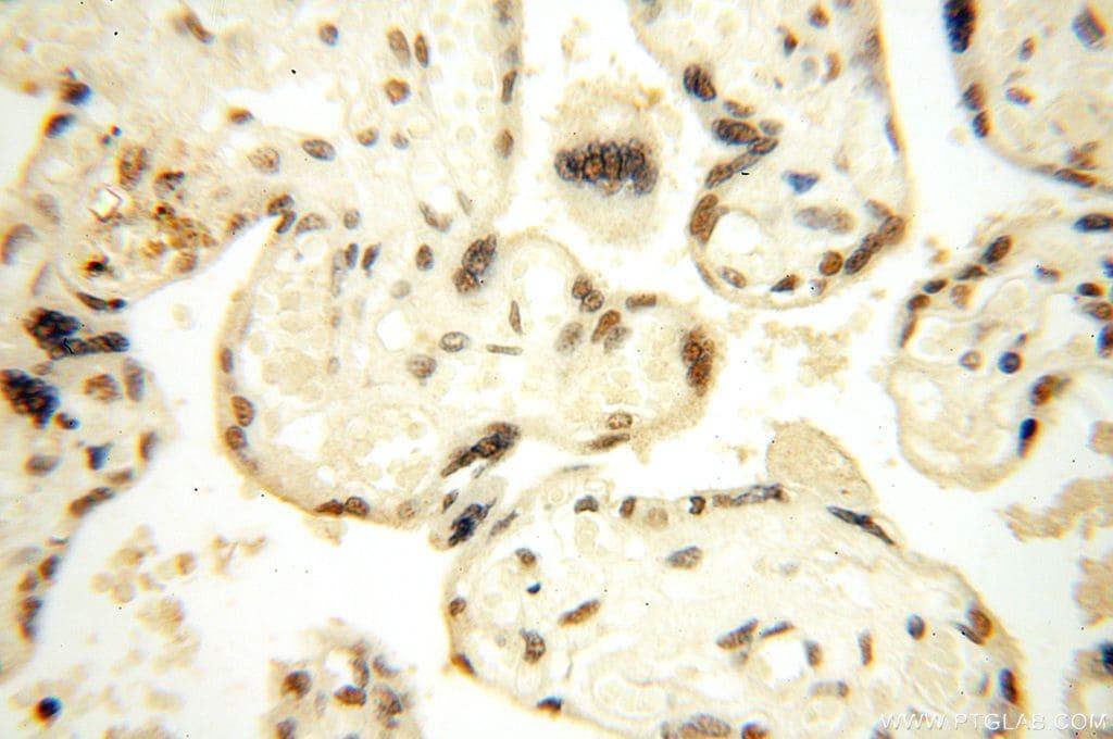 WRAP53 Antibody in Immunohistochemistry (Paraffin) (IHC (P))