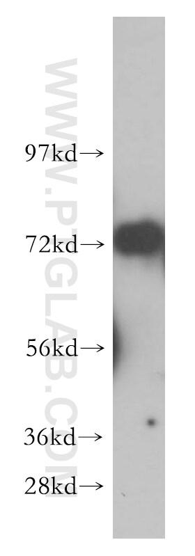 WRAP53 Antibody in Western Blot (WB)
