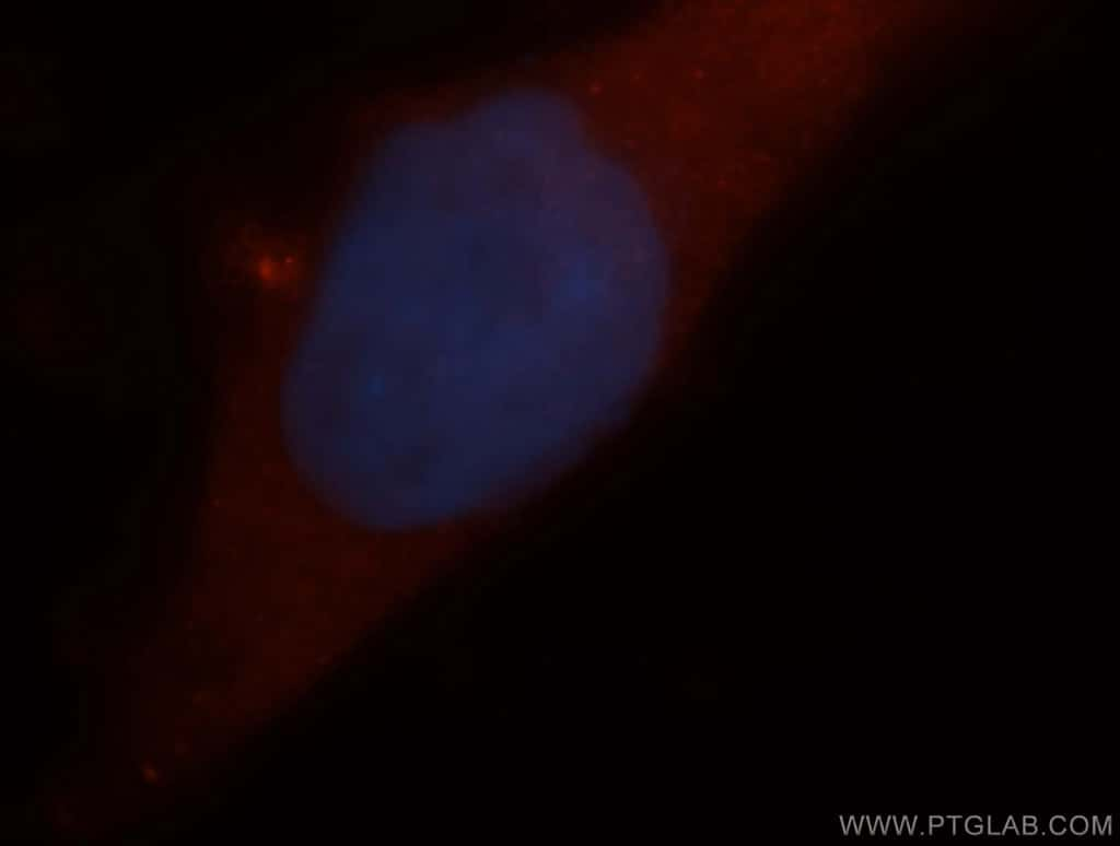 ARD1A Antibody in Immunofluorescence (IF)