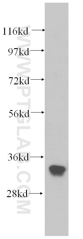 EXOSC2 Antibody in Western Blot (WB)