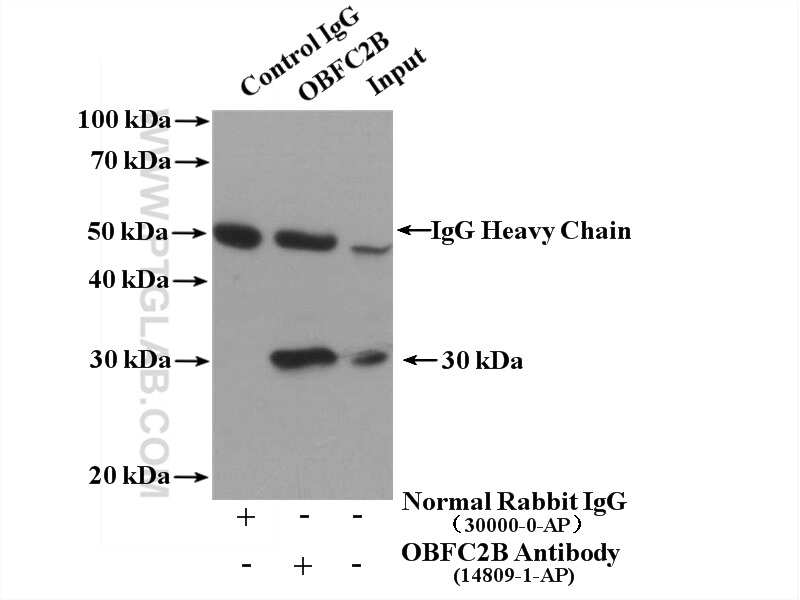 OBFC2B Antibody in Immunoprecipitation (IP)