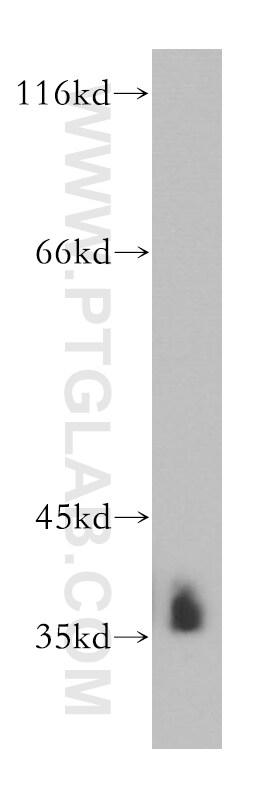 HNRNPA2B1 Antibody in Western Blot (WB)