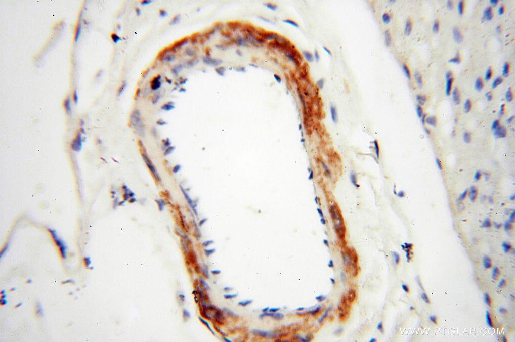 MICAL1 Antibody in Immunohistochemistry (Paraffin) (IHC (P))