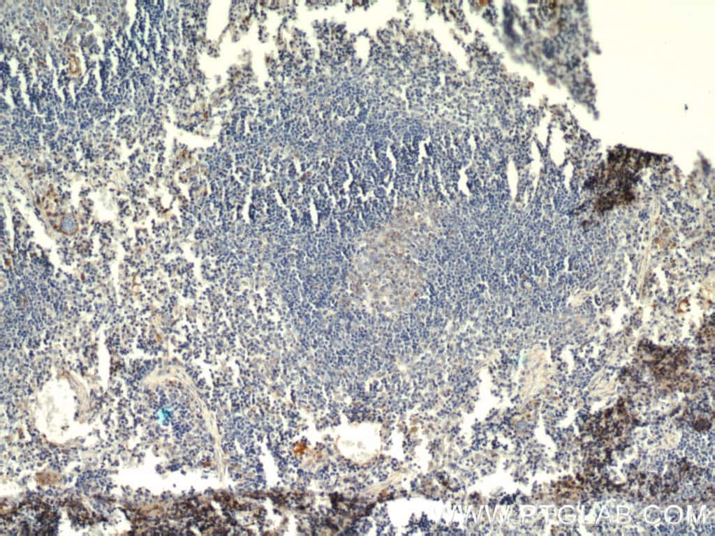 HMHA1 Antibody in Immunohistochemistry (Paraffin) (IHC (P))