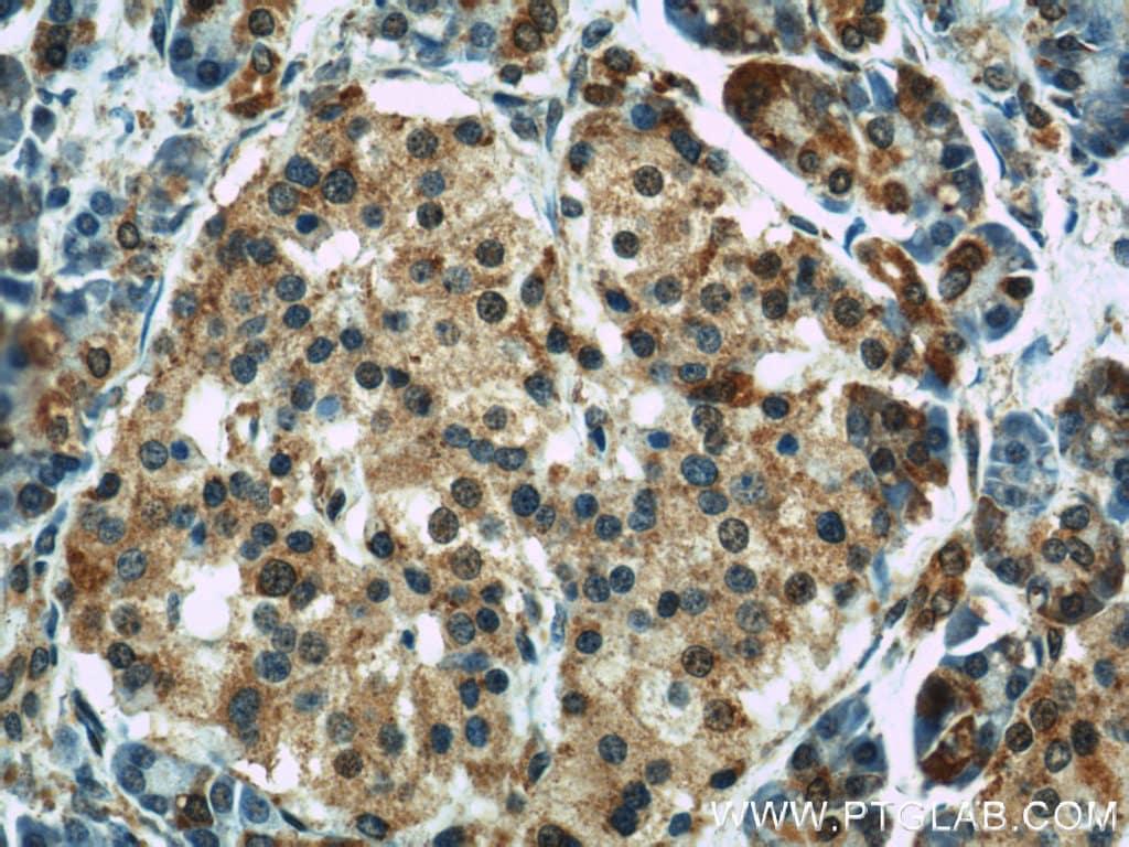 GEFT Antibody in Immunohistochemistry (Paraffin) (IHC (P))