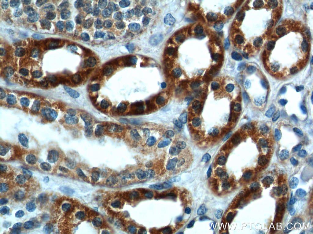 SLC25A6 Antibody in Immunohistochemistry (Paraffin) (IHC (P))
