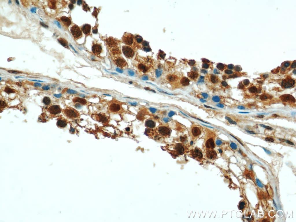 PSMD4 Antibody in Immunohistochemistry (Paraffin) (IHC (P))