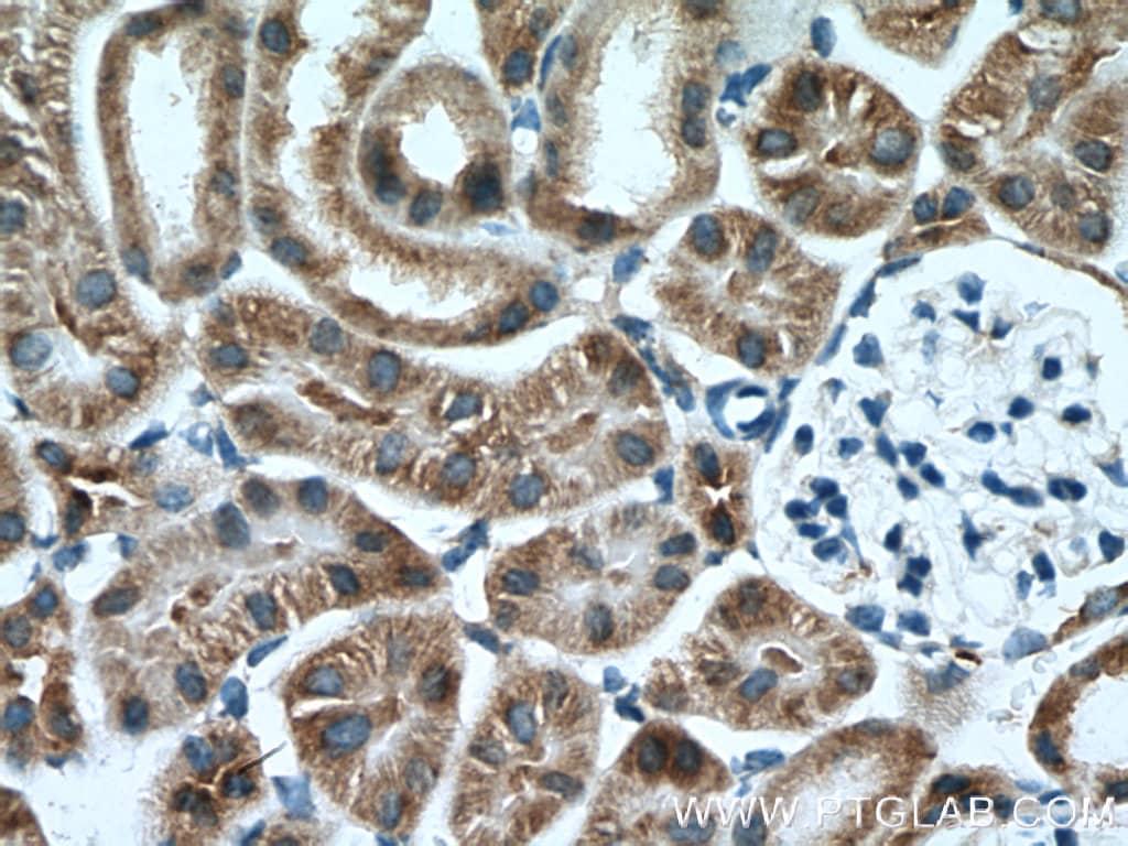 AARSD1 Antibody in Immunohistochemistry (Paraffin) (IHC (P))