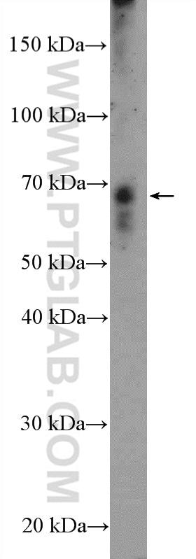HKR1 Antibody in Western Blot (WB)