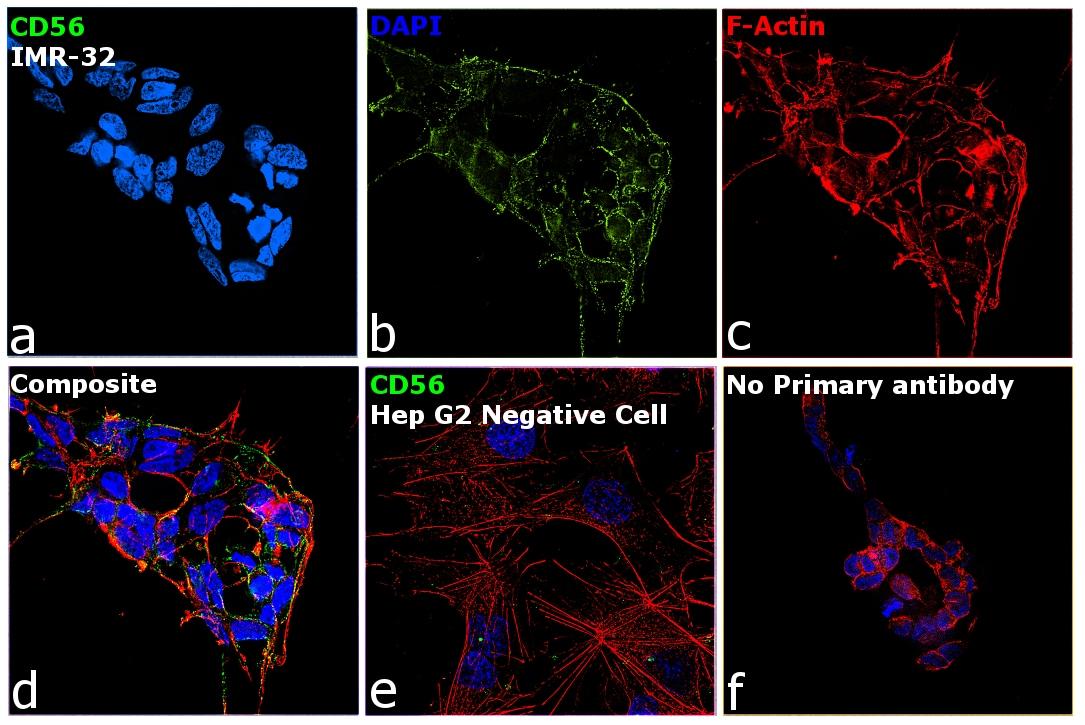 PSA-NCAM Antibody in Relative expression