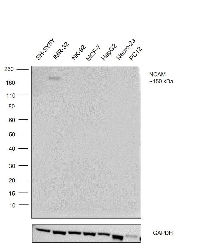 PSA-NCAM Antibody in Western Blot (WB)