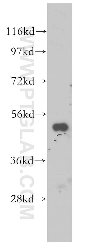DDOST Antibody in Western Blot (WB)