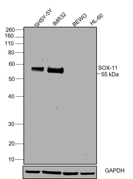 SOX11 Antibody in Relative expression
