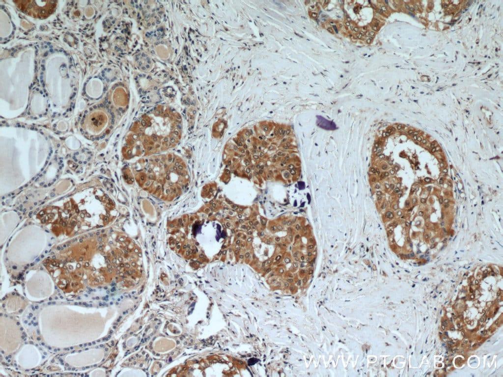 Galectin-3 Antibody in Immunohistochemistry (Paraffin) (IHC (P))