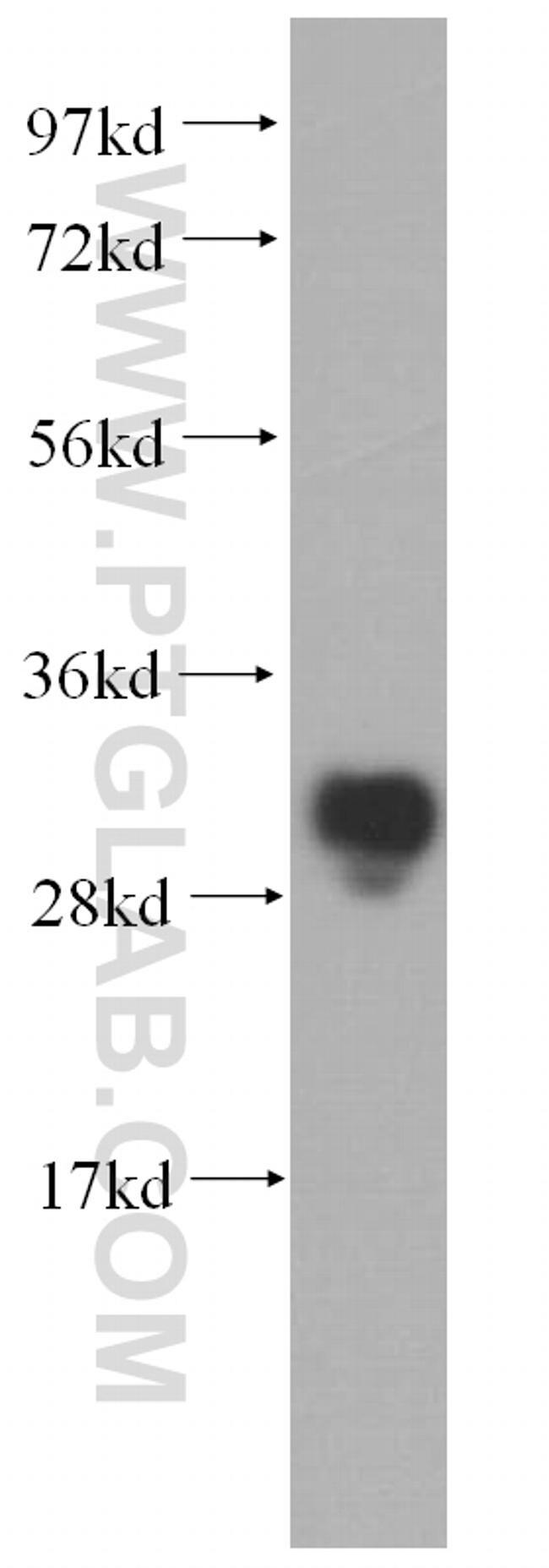METTL1 Antibody in Western Blot (WB)