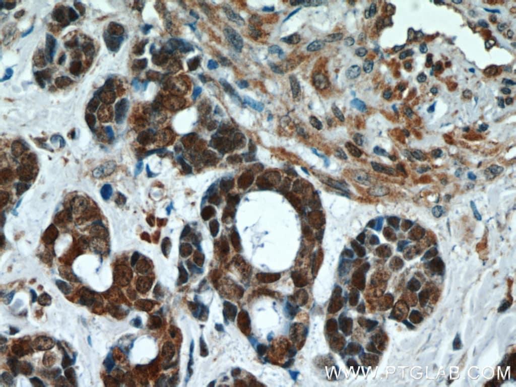 Thioredoxin Antibody in Immunohistochemistry (Paraffin) (IHC (P))